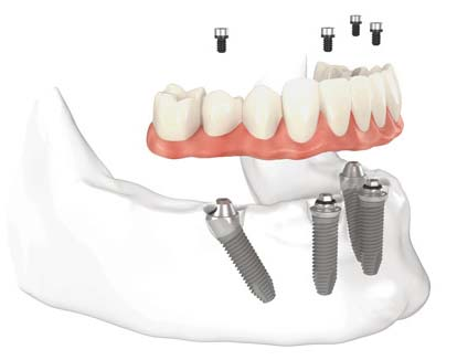 Implant dentures in Park Ridge, IL