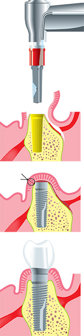 Dental Implant Process in Park Ridge, IL